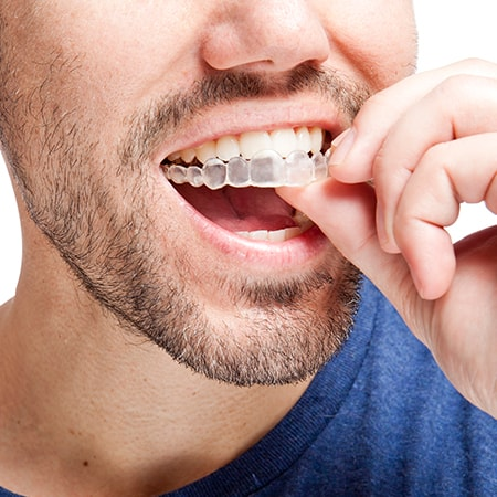 Man putting on invisalign braces
