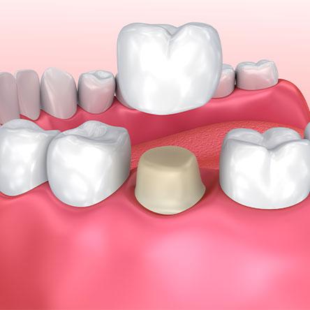 illustration of a dental crown procedure